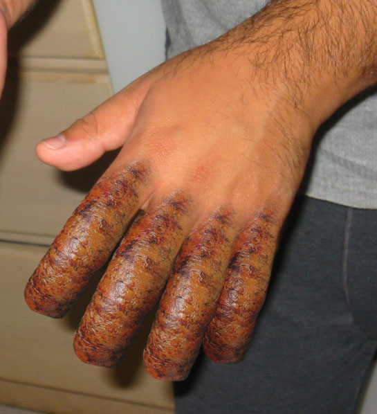 sausage_fingers