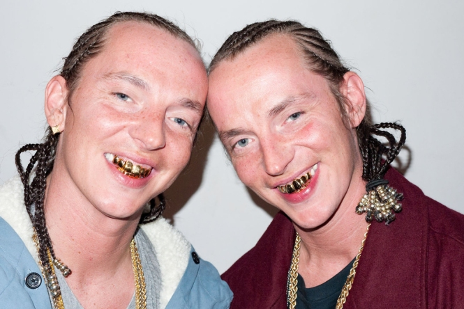 gold toothed twins